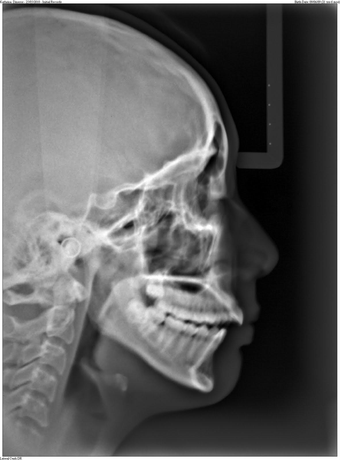 Kat Marie S Jaw Surgery Blog My Story