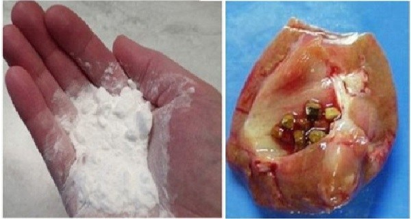 Surprising Way! To Repair Your Kidneys Naturally With Baking Soda!!