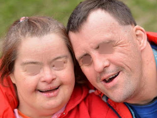 A photo of adult patients with Hurler syndrome picture
