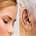 Marca no lóbulo da orelha pode indicar que você está em risco de AVC