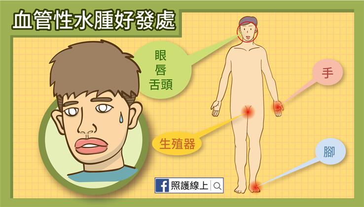 怎麼會變香腸嘴? – 血管性水腫(懶人包) - 照護線上