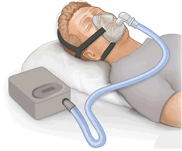Anti Snurk Kussen : Anti snurk effectieve middelen tegen snurken voor een
