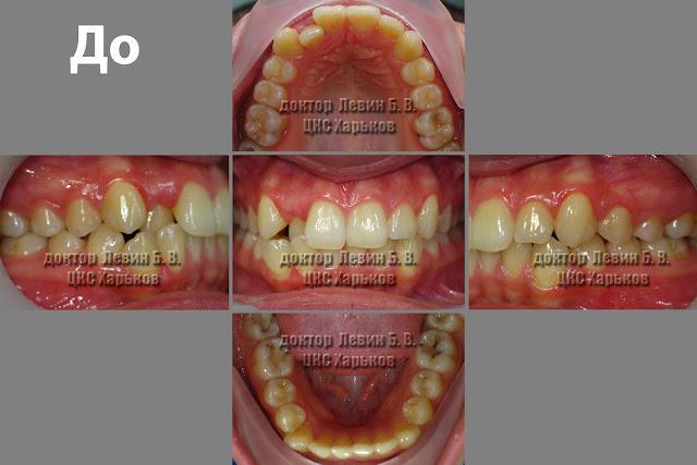 Пять фото зубов пациента до установки брекет системы