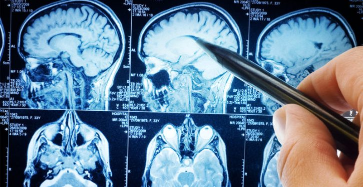 Neuroscience Finally Reveals What Fasting Is Doing To Your Brain