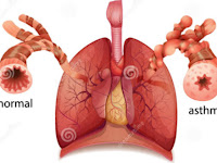 Types of Bronchial Asthma You Need to Know
