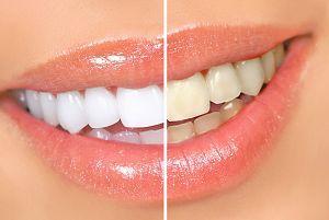 Prosedur dan Efek samping Memutihkan gigi