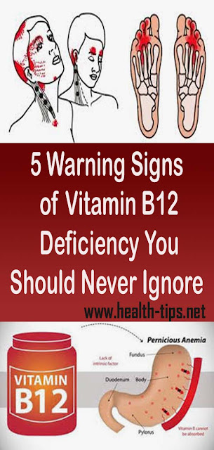 5 Warning Signs of Vitamin B12 Deficiency You Should Never Ignore#NATURALREMEDIES
