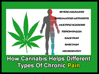 Which Cannabis Strain Will Suit You Best As Nerve Pain Sufferer