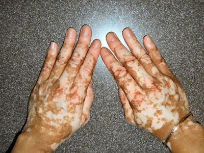 Vitiligo nedir? Peki ya tanıdığınız en ünlü vitiligo hastası kim?
