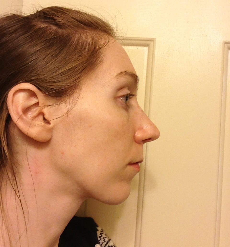 Pin Long-face-syndrome-pictures on Pinterest