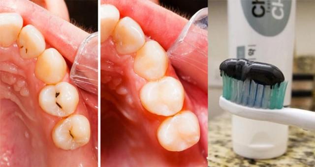 pasta de dientes contra caries