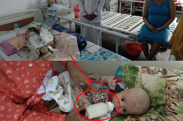Bahaya Susu Kental Manis Untuk Bayi, Peringatan Keras Untuk Orangtua, BPOM Berikan Saran Ini