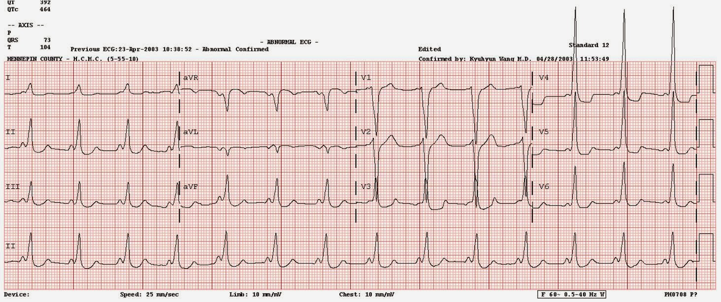 Can A Cardioversion Be Done At St Mary S Emergency Room