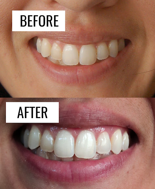 At home teeth whitening before and after pictures