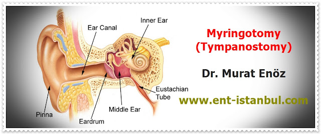 Myringotomy - Tympanostomy - Myringotomy (Tympanostomy) Indications - Myringotomy (Tympanostomy) Contrandications - Myringotomy (Tympanostomy) Technique - Myringotomy (Tympanostomy) Risks & Complications - Postoperative Patient Care For Myringotomy (Tympanostomy) - Ear tube insertion