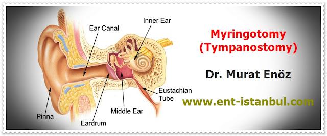 Myringotomy - Tympanostomy - Myringotomy (Tympanostomy) Indications - Myringotomy (Tympanostomy) Contrandications - Myringotomy (Tympanostomy) Technique - Myringotomy (Tympanostomy) Risks & Complications - Postoperative Patient Care For Myringotomy (Tympanostomy) - Ear tube insertion