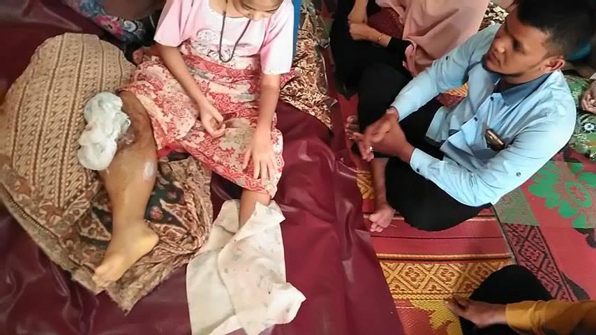 LPDA Ajak Dermawan Bantu Anak penderita Tumor Ganas