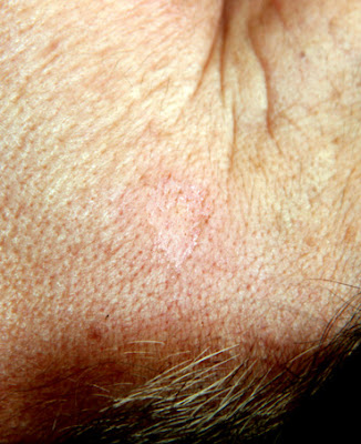 La pigmentazione di pelle per togliere