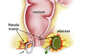Obat Herbal Fistula Ani Tanpa Operasi