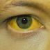 Fiebre amarilla: La muerte de un cipoleño podría ser el primer caso fatal en el país