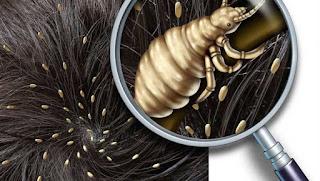 Comment éliminer les poux avec l'huile essentielle de lavande