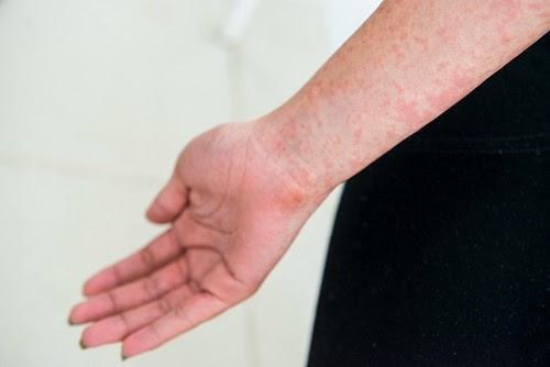 Cómo reconocer los síntomas de la fiebre chikungunya