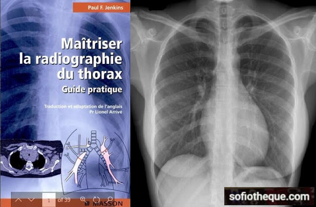 Maîtriser la Radiographie du Thorax PDF