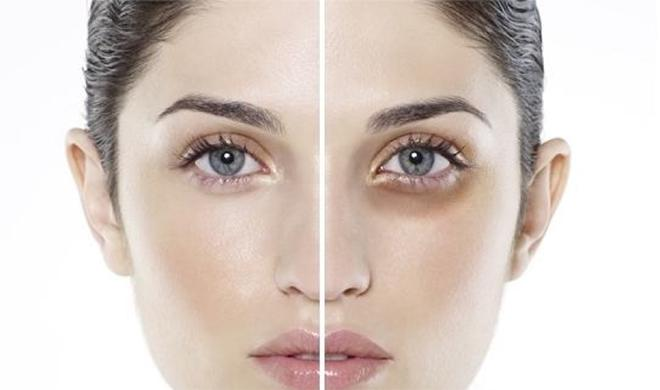 Nguyên nhân xuất hiện quầng thâm mắt và cách điều trị hiệu quả