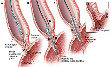 endoscopy and colonoscopy ~ dr k aravind, Skeleton