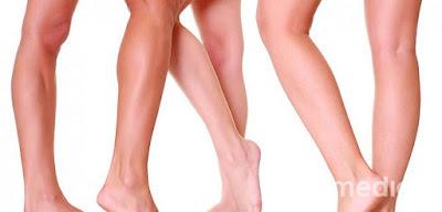 Choroba cywilizacji – żylaki nóg.