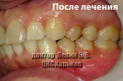 Фото зубов в боковом участке с погрешностями лечения