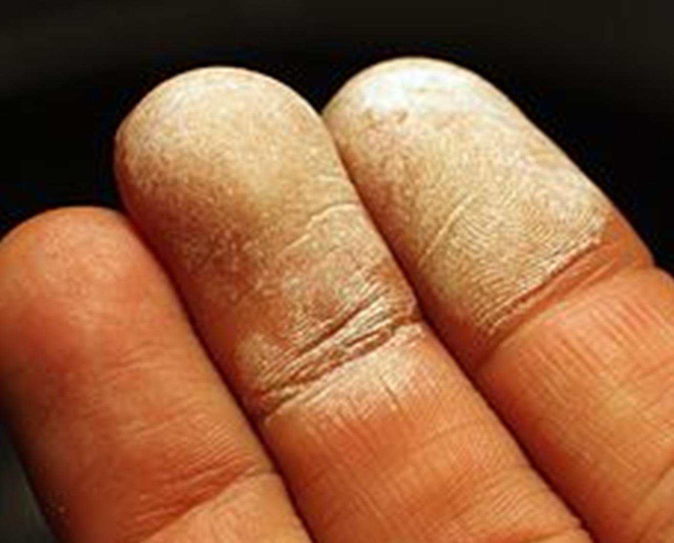 agua oxigenada linear unit solfa syllable piel mancha