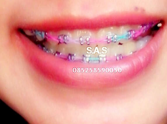 Si Cantik dan Behel Kawat Giginya Cekidot Mbak Bro