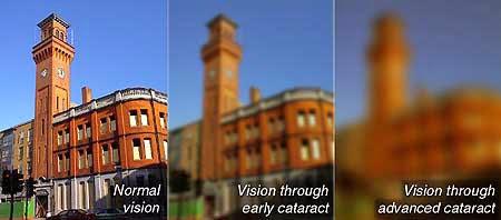 http://www.amrithospital.com/bladeless-cataract.html