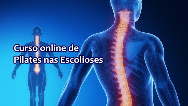 Material: Curso online de Pilates nas Escolioses
