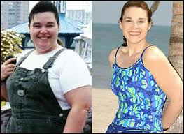 Role-of-weight-loss-surgery-in-the-treatment-of-over-weight-surgery-image-reload