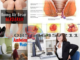 Obat Wasir Hemorrhoids Yg Di Jual Online