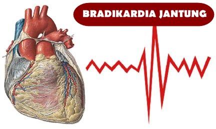 Nama Obat Bradikardia Di Apotik