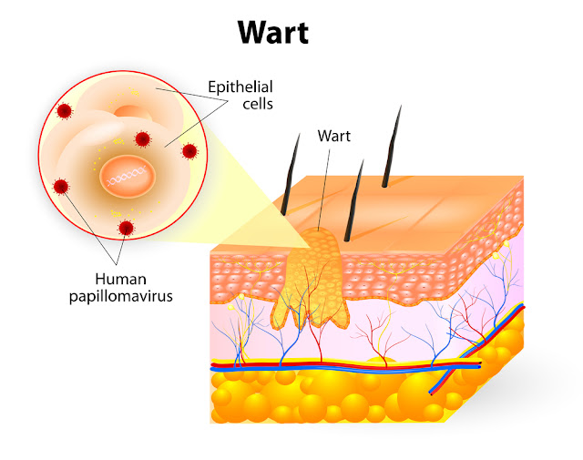 Podophyllin Dose, Side effects, Mechanism of action, Uses for warts