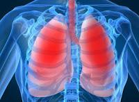Gejala Penyakit Kanker Paru-Paru, Penyebab dan Pencegahan