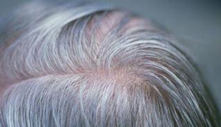 Cara Mudah Atasi Masalah Rambut Beruban