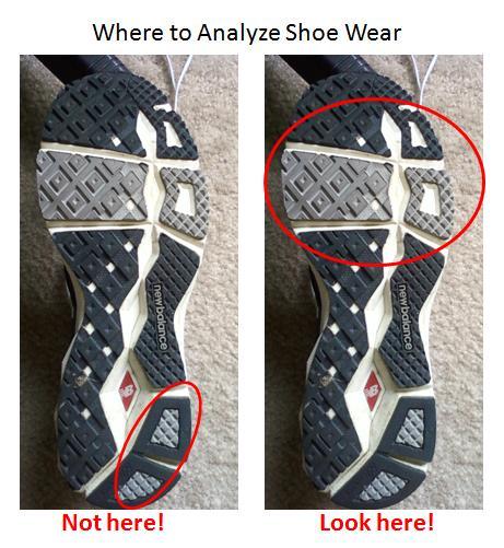 Determine Pronation From Shoe Wear