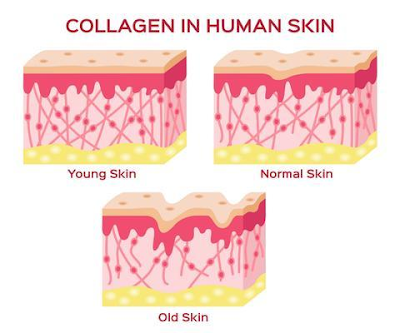 soluble collagen adalah, soluble collagen halal, soluble collagen in cosmetics, soluble collagen vegan, soluble collagen inci, soluble collagen vs hydrolyzed collagen, soluble collagen for skin, soluble collagen assay, soluble collagen là gì, quickzyme soluble collagen assay, acid soluble collagen, collagen solubility acid, ac soluble collagen, ac soluble collagen pbf, is a collagen soluble, soluble collagen benefits, Aulora Feminine Hygiene, Feminine Hygiene, Pembersih daerah kewanitaan, organ kewanitaan, Vagina, Keputihan, Kanker Serviks, Miom, Aulora Gamat Bar Soap With Gold Pearlize, Aulora Gamat Soap, Gold Pearlize, pibipibo, pibipibo adalah, pibipibo sabun collagen, pibipibo gamat spray manfaatnya, pibipibo sabun, pibipibo harga, pibipibo marketing plan, pibipibo green coffee, pibipibo review, arsyla bangkit mandiri, kolagen adalah, kolagen alami, kolagen hpai, kolagen keratin dan fibrion adalah protein yang memiliki fungsi, kolagen didapat dari mana, kolagen ikan, kolagen kulit, kolagen tipe 1, kolagen adalah pdf, kolagen terdapat pada, kolagen apa, kolagen asli, kolagen ampul, kolagen atau vitamin e, kolagen alami dari makanan, kolagen ayam adalah, kolagen a vitamin c, collagen peptides, collagen peptide powder, collagen peptide journal, collagen peptides sports research, collagen peptide japan, collagen peptides for alopecia, collagen peptide maquereau, collagen peptides vital proteins, collagen peptide daily dosage, collagen peptide adalah, collagen peptide amazon, collagen peptide absorption, collagen peptide allergy, collagen peptide acne, collagen peptide amino acids, the collagen peptides, what does a collagen peptide do, collagen adalah, collagen plus, collagen house, collagen plus vit e, collagen prime, collagen crystal eye mask, collagen facial cleanser, collagen asli, collagen drink nasa, collagen aman atau tidak, collagen asli bpom, collagen apa, collagen ampul, aurora, auroratoto, aulora band, aulora feminine, feminine hygiene products, feminine hygiene wipes, feminine hygiene products tax, feminine hygiene tips, feminine hygiene spray, feminine hygiene wash, feminine hygiene pads, feminine beauty, feminine logo, feminine style, feminine hygiene v-pet, feminine font, feminine hygiene new test-v, feminine hygiene new gold v, hygiene adalah, hygiene sanitasi, hygiene dan sanitasi, hygiene perorangan, hygiene sanitasi makanan, hygiene kit, hygiene makanan, hygiene sanitasi adalah, higiene industri