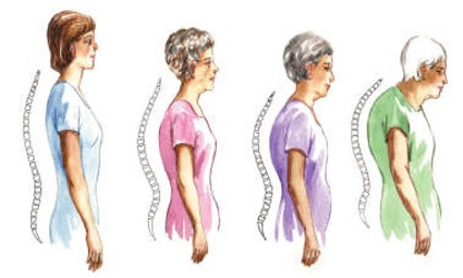 Osteoporosis is a serious problem for many postmenopausal