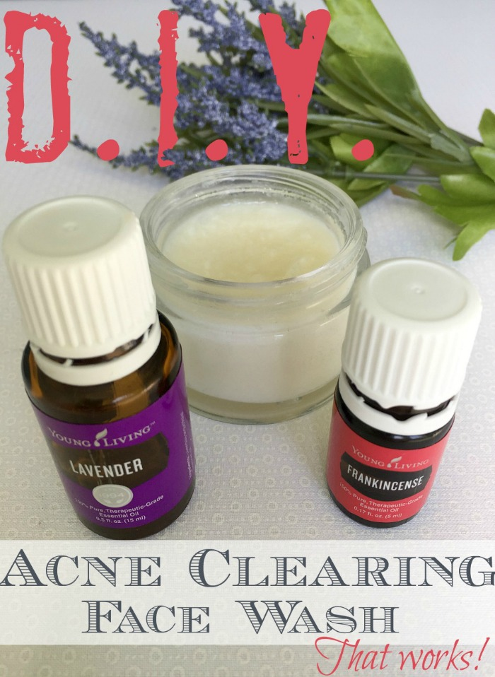 Easy to make acne face wash that naturally clears up breakouts #essentialoils #DIY #beautyproducts #acne