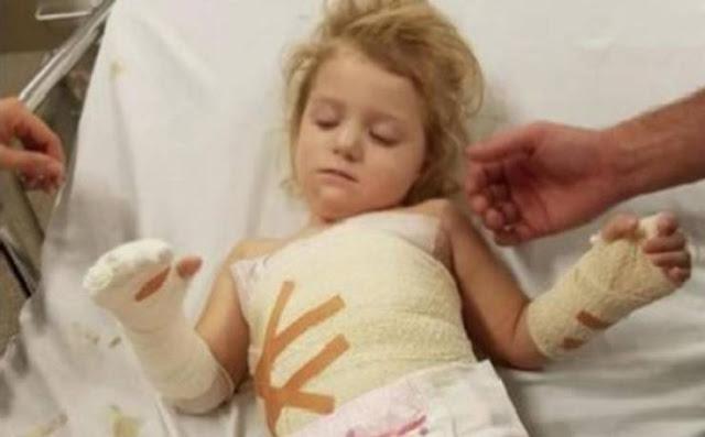 هذه الطفلة كادت أن تخسر يدها بسبب شيء خطير موجود في منازلكم احذروا .. الأمر خطير جداً
