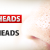 Know About Whiteheads And Blackheads For Clear Skin