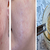 Stop Your Problem With Dark Spots Without Spending Money Using These Ingredients