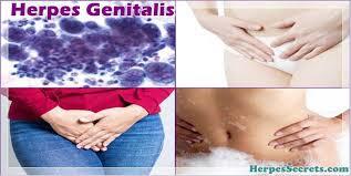 Obat Herpes Genital Tradisional untuk Wanita