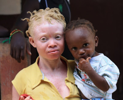 The term Person with Albinism (PWA) is the correct term to use and not albino for people living with the condition.